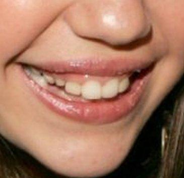 Krzywe zęby, pryszcze, owłosione ręce