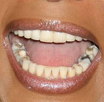 Zepsute zęby Whitney Houston